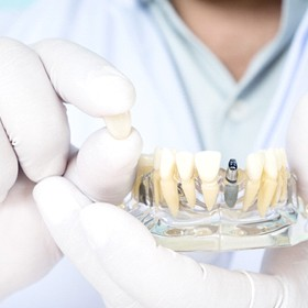 dentist holding up a model of an implant-retained crown