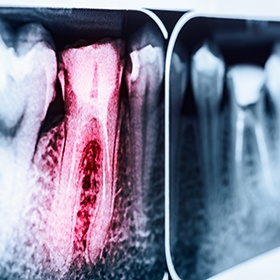 X-ray of tooth highlighted red