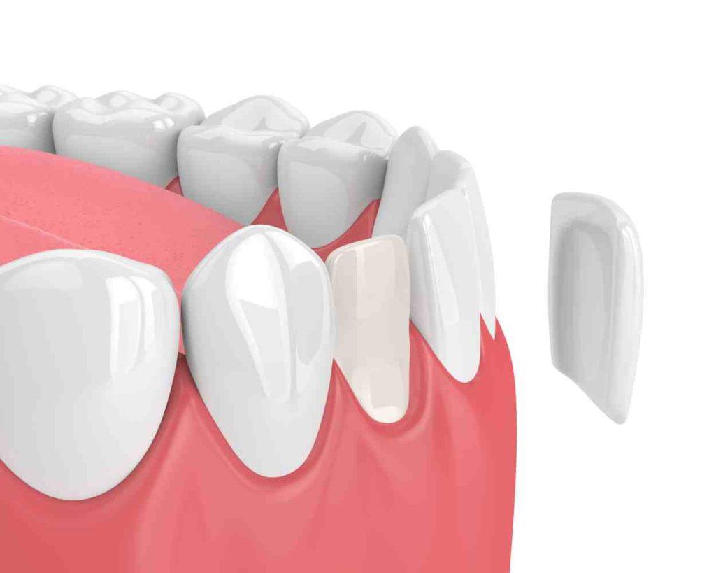 Digital image of porcelain veneer